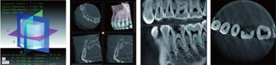 歯科用CTの画像