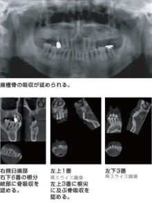 矯正治療のCT画像