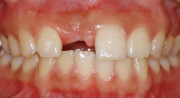 上前歯のインプラント治療前