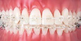 矯正治療中の歯