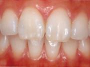上前歯のインプラント治療後