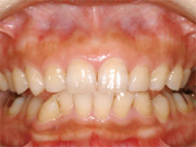 奥歯のインプラント治療後